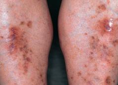picazón en la piel en diabetes